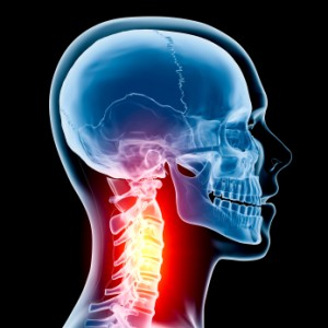 Neck injuries and problems can cause migraines and headaches