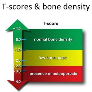 T-Scores for a bone density test - low scores suggest MBST / MRT