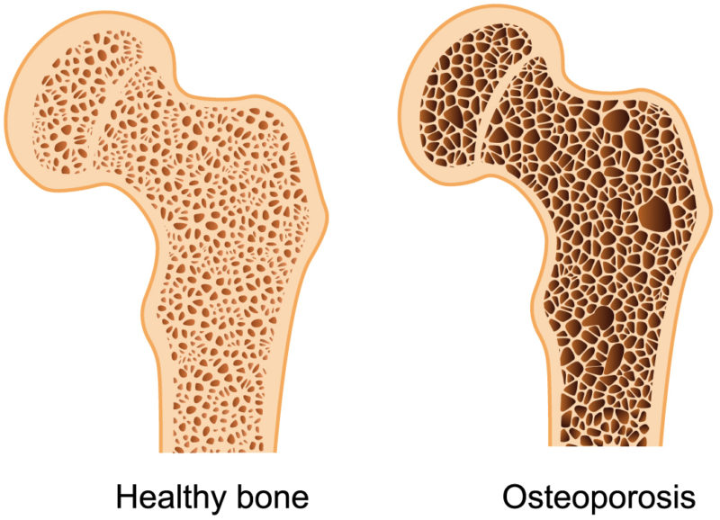 Osteoporosis and Magnetic Resonance Therapy