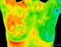 Thermal Breast Screening Marbella