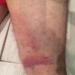 Carlos' leg post treatment