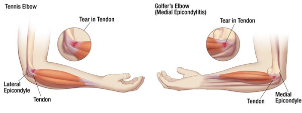 the difference between Golfer's elbow and Tennis elbow