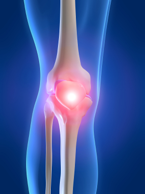 chronic knee pain and how to manage it