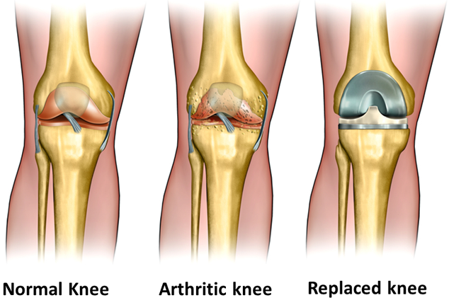 Knee surgery - total knee replacement, arthroscopy, ACL - getting a good result