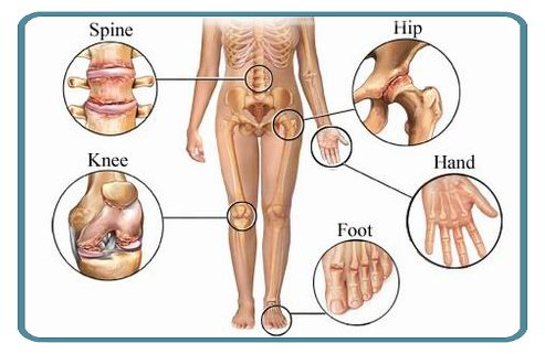 Arthritis and OsteoArthritis can occur in any joint in the body