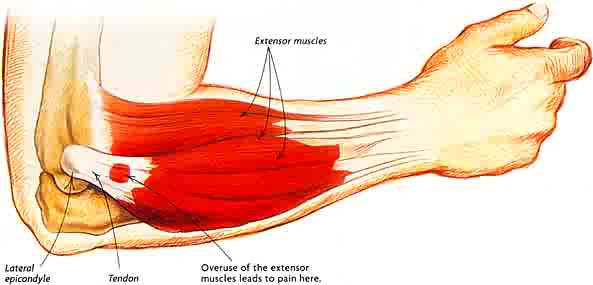 Tennis Elbow - often misdiagnosed and mistreated with cortical steroid injections