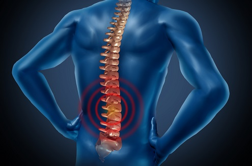 Chronic Lower Back Pain - Lumbar fusion is not the solution