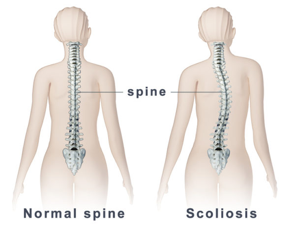 Scoliosis - What to look for