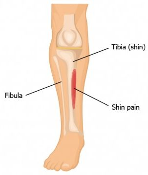Shin Splint pain location