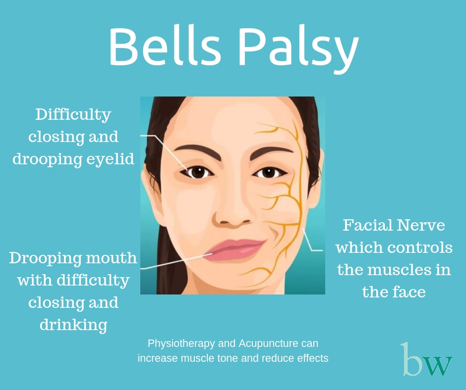 Bells Palsy - physiotherapy and acupuncture can reduce effects