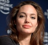 Bells Palsy - Angelina Jolie was a famous sufferer